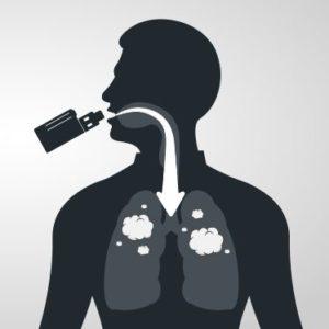 Direct Lung Vape Options (DL)